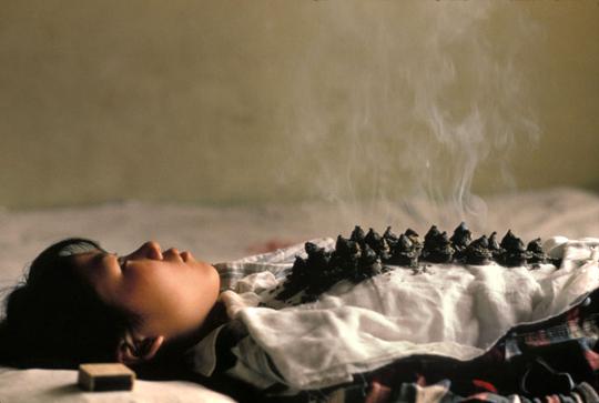 Photo of Moxibustion